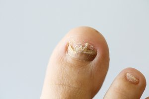 Toenail Fungus Treatment in Sugar Land